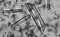 Struvitkristalle im Mikroskop